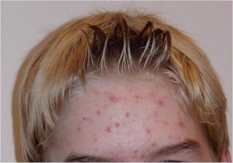 Химический комплекс для восстановления волос